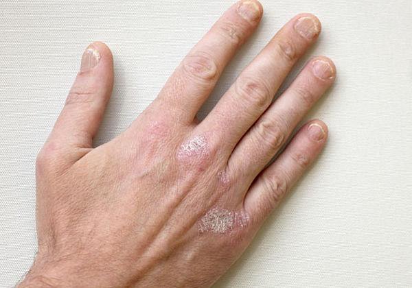 Nowokain behandelt gribok der Nägel
