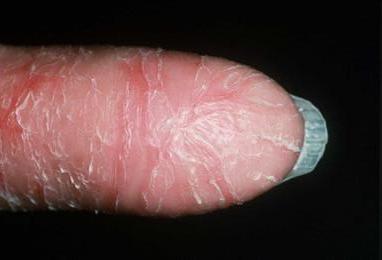 Die Ringelrose die Salbe die Schuppenflechte